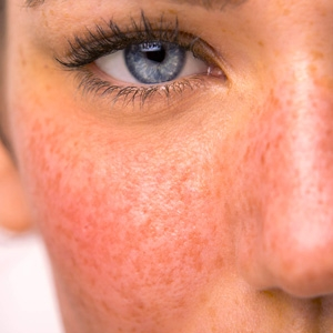 Skincare products to relieve irratation and redness including rosacea