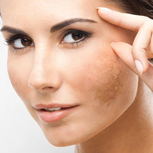 Skincare product to help pigmented skin